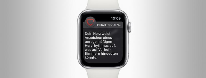 AppleWatchEKG3